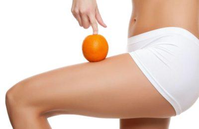 Los Mejores Deportes para Combatir la Celulitis
